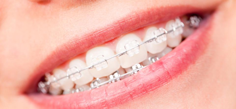 Dentalmax